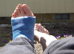 castfoot